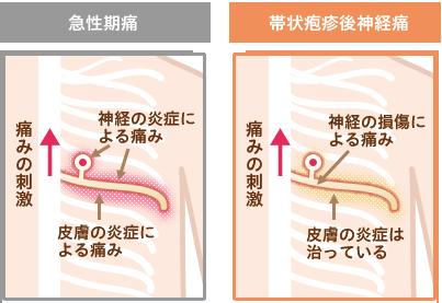 帯状 疱疹 症状